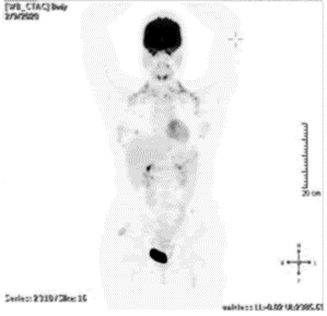Race Oncology (ASX:RAC) - Patient after receiving Bisantrene
